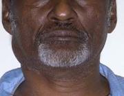 Een Afrikaanse man met een zwelling in de hals