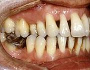 Proefschriften 25 jaar na dato 24. Belemmeringen bij effectieve parodontale behandeling