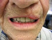 Zorgverlening aan kwetsbare ouderen met volledige gebitsprothesen