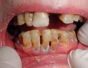 Oral medicine 5. Voedingsadviezen bij en psychosociale aspecten van smaak- en reukstoornissen