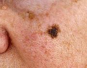 Een rol voor tandartsen bij verdenking op een melanoom in het aangezicht