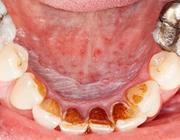 Oral medicine 7. Witte veranderingen van het mondslijmvlies