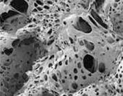 Gemodificeerd polyurethaanschuim als lokaal hemostaticum na gebitsextracties