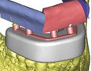 Driedimensionale technologie en reconstructies van grote kaakdefecten