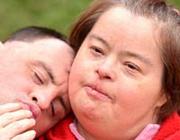 Proefschriften 25 jaar na dato 35. Parodontale afbraak bij syndroom van Down: een immunologisch probleem