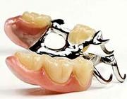 Tandarts of tandprotheticus kan aansprakelijk zijn voor schade door een ongeschikte gebitsprothese