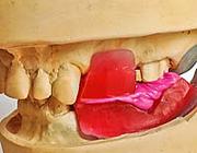 Bepaling en registratie van de maxillomandibulaire relatie bij de vervaardiging van kronen en bruggen