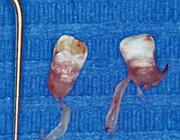 (Con)natale gebitselementen: een rol voor kraamzorg en tandheelkundige zorg