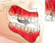 Interceptieve behandeling van een maxillaire hypoplasie met behulp van botankers. Een literatuuronderzoek
