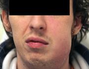 Keelpijn en zwelling van de hals: eerste symptomen van het syndroom van Lemierre