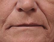 Verouderingsverschijnselen in het aangezicht en cosmetische aangezichtschirurgie