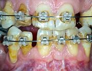 Preprothetische orthodontische behandelingen