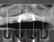 Retentieproblemen van de bovenprothese: is het plaatsen van 2 palatinale implantaten de oplossing?