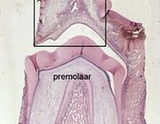 Mechanismen van tanderuptie