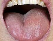 Unilateraal angio-oedeem van de tong en de mondbodem door ACE-remmers