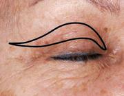 Ooglidcorrecties in de cosmetische aangezichtschirurgie