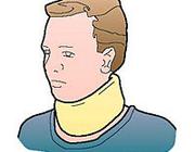 Het cervicaal-radiculair syndroom