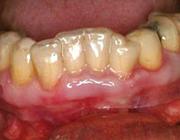Symptomatische behandeling van lichen planus van de vaste gingiva