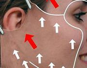 Liftingprocedures in de cosmetische aangezichtschirurgie