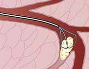 Speekselstenen: etiologie, samenstelling en behandeling
