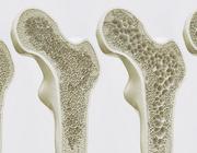 Osteoporose: risicofactor voor implantaten?