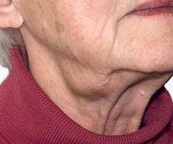 Een Vergrote Lymfeklier In De Hals Wat Te Doen Ntvt