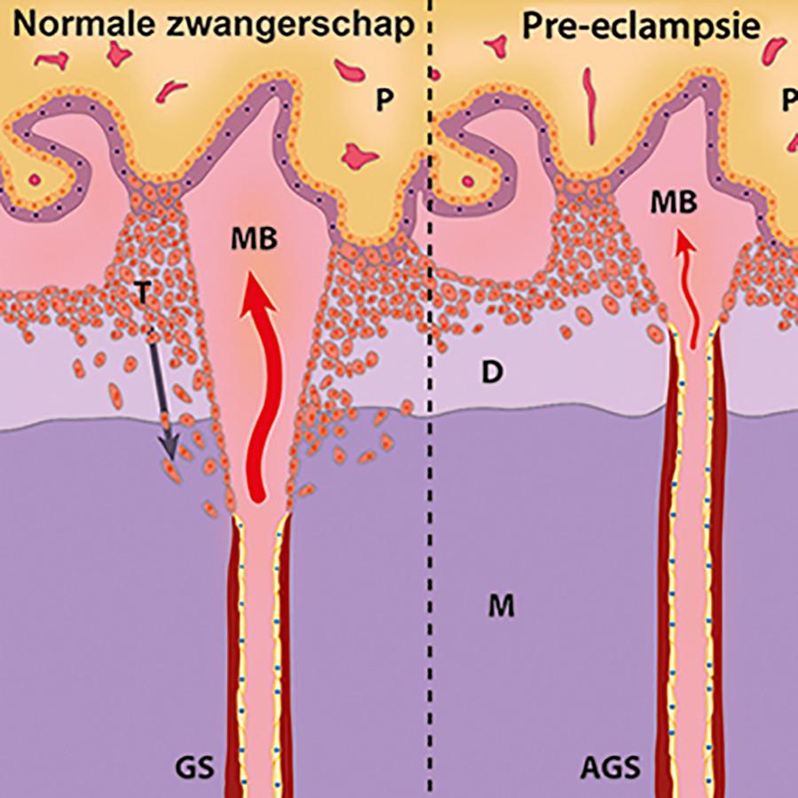 Afb. 1. Ontwikkeling van de spiraalarteriën tijdens de normale zwangerschap en pre-eclampsie.