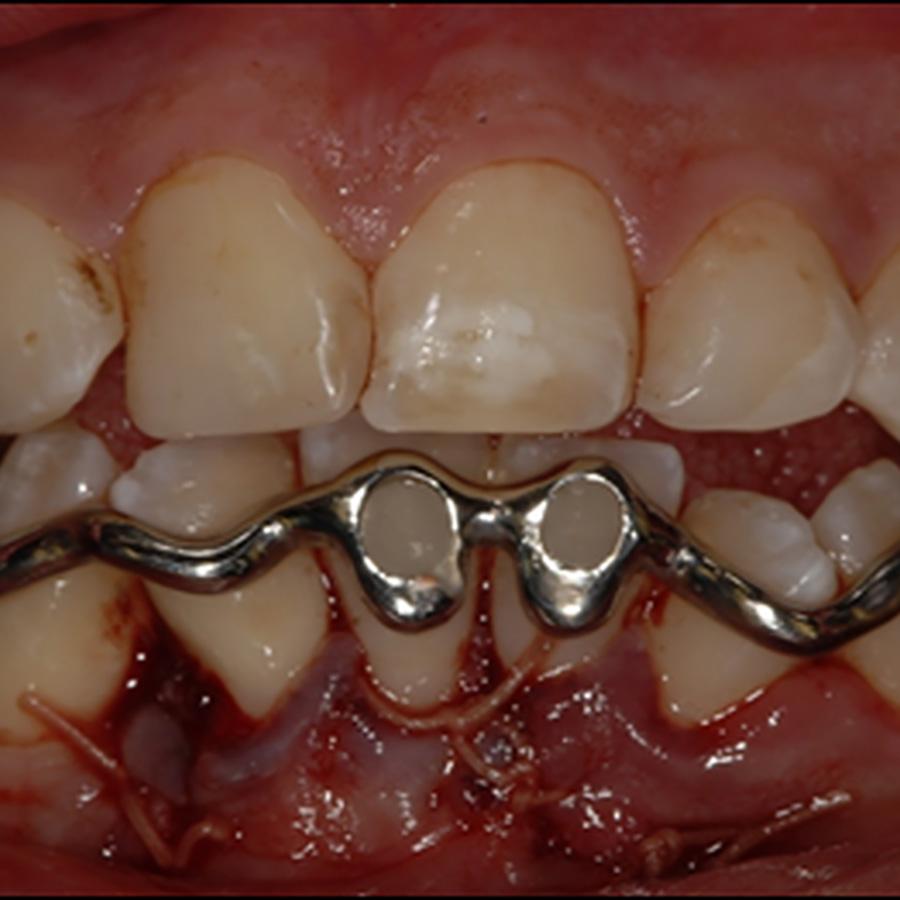 Afb. 5.b. De driedimensionaal geprinte dentale spalk in situ.