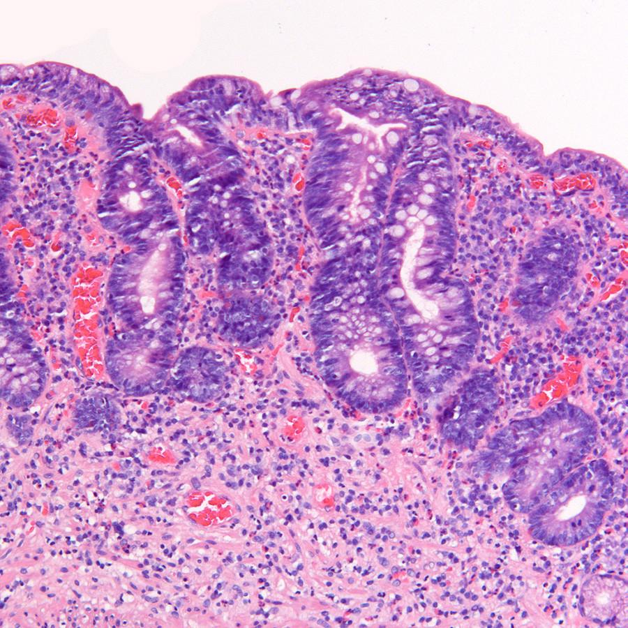 Een bij coeliakie passend duodenumbiopt (met dank aan drs. E.A. Neefjes-Borst, patholoog aan het VUmc in Amsterdam, is deze afbeelding verkregen).