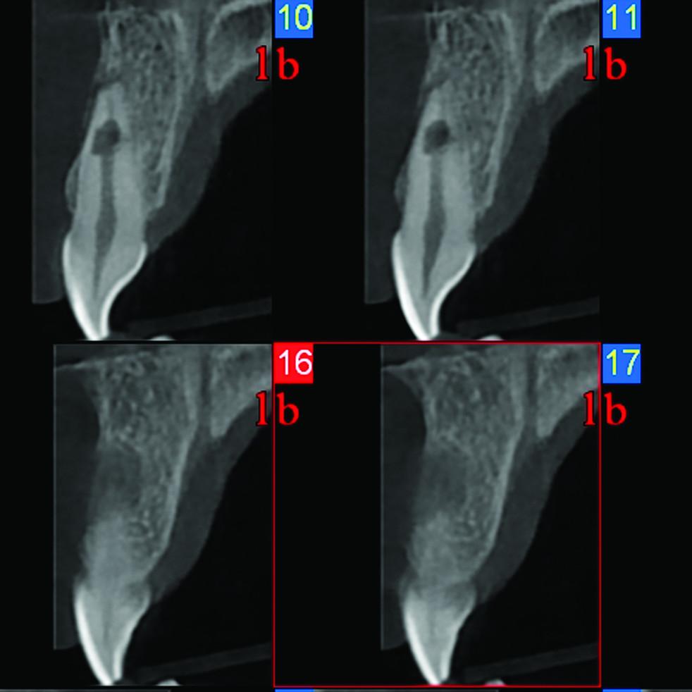 Afb. 5. c. CBCT-scan van gebitselement 21 met een interne wortelresorptie in combinatie met wortelperforatie.
