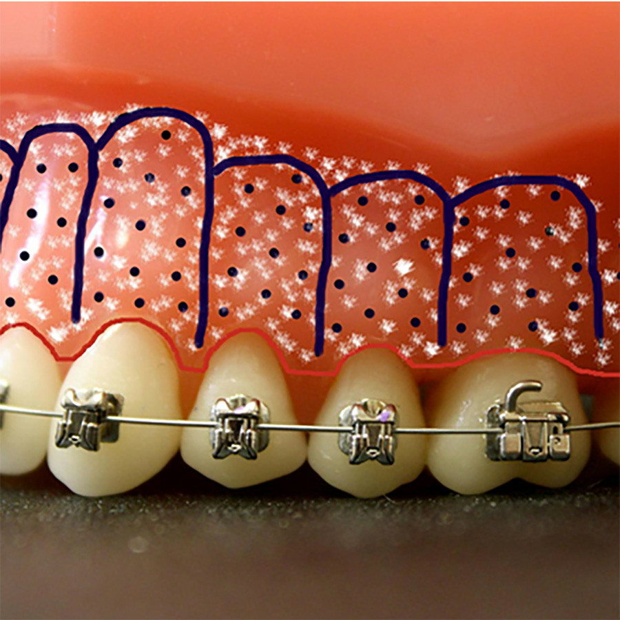 Afb. 1a. Periodontally accelerated osteogenic orthodontics (PAOO) of Wilckodontics.