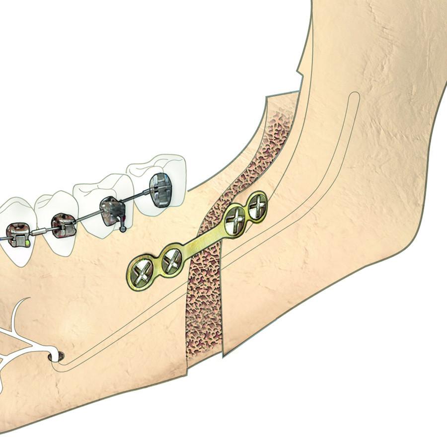 Afb. 1. Bilaterale sagittale splijtingsosteotomie.