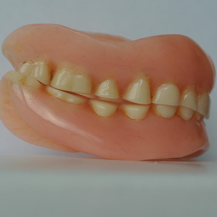 Volledige gebitsprothesen met verscheidene technische mankementen, waaronder een verstoorde maxillomandibulaire relatie (met dank aan drs. A.G. van Andel).
