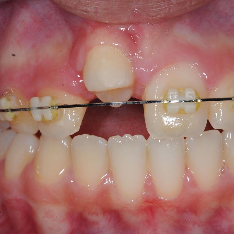 Afb. 1. c. Klinische opname van gebitselement 11, 6 weken na transplantatie voor orthodontische extrusie.