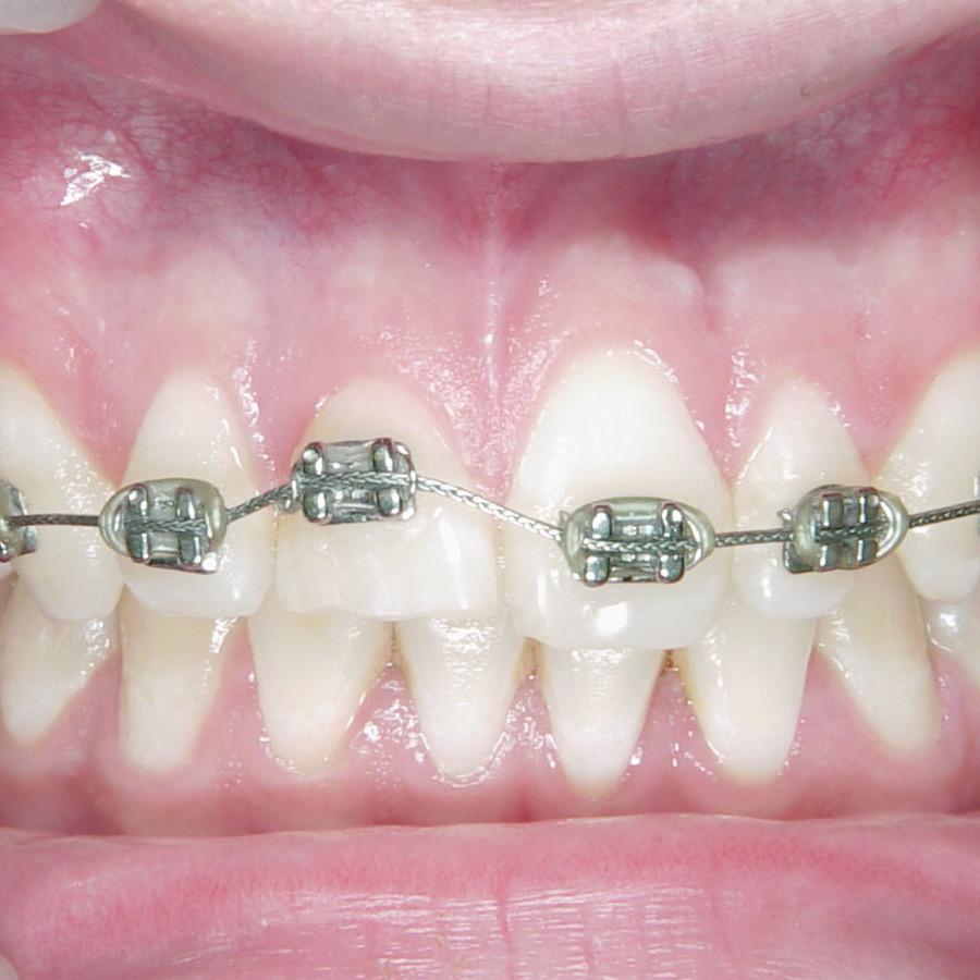 Afb. 3. Vaste orthodontische apparatuur geplaatst op de frontelementen, waarbij de bracket op gebitselement 11 naar gingivaal is gepositioneerd om extrusie mogelijk te maken.