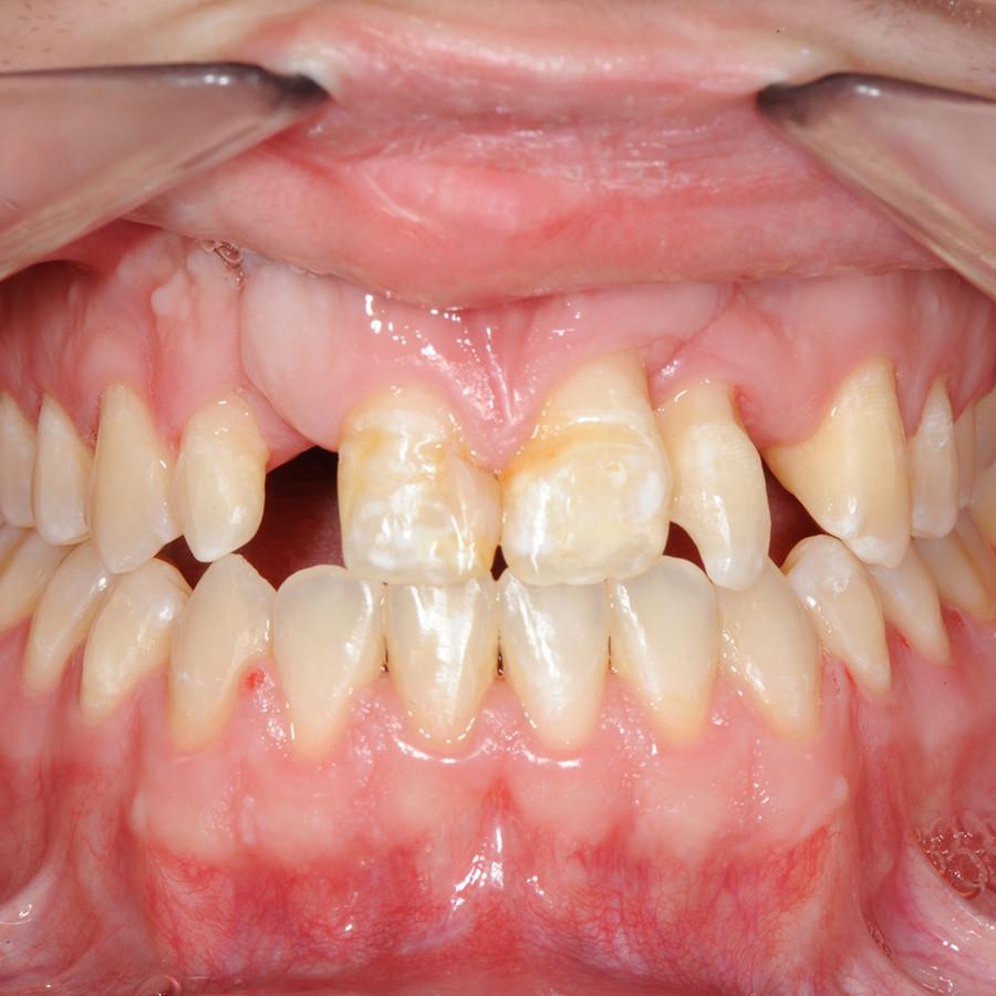 Afb. 3c. Na de orthodontische behandeling bleek dat door gebrek aan bot de diastemen niet verder konden worden gesloten.
