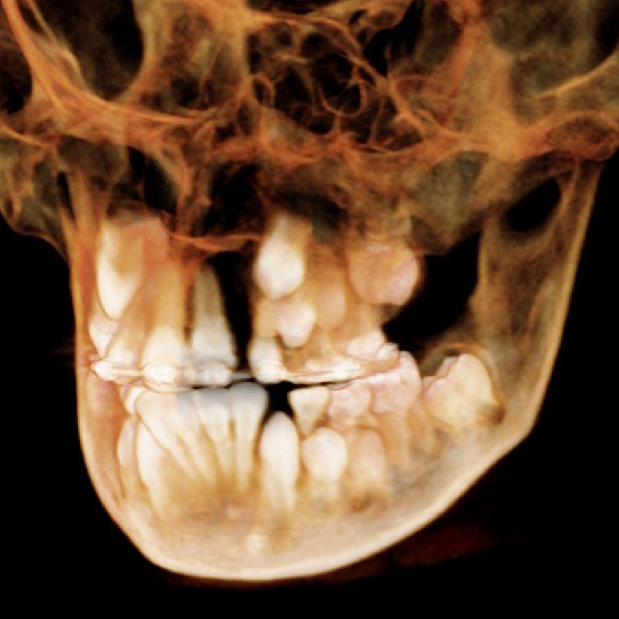 Afb. 1a. Een 9,3-jarige patiënt met een complete unilaterale schisis links.
