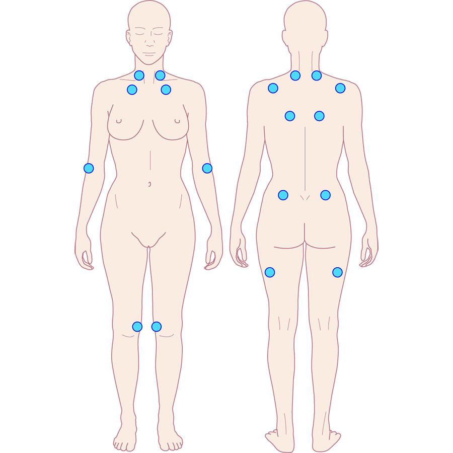 Afb. 1. De 18 locaties waar patiënten met fibromyalgie pijn voelen als een arts met een vinger erop drukt.