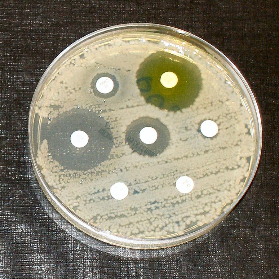 De bacteriën in de kweek zijn alleen gevoelig voor slechts 3 van de 7 antibiotica (Beeld: dr. Graham Beards op en.wikepedia)