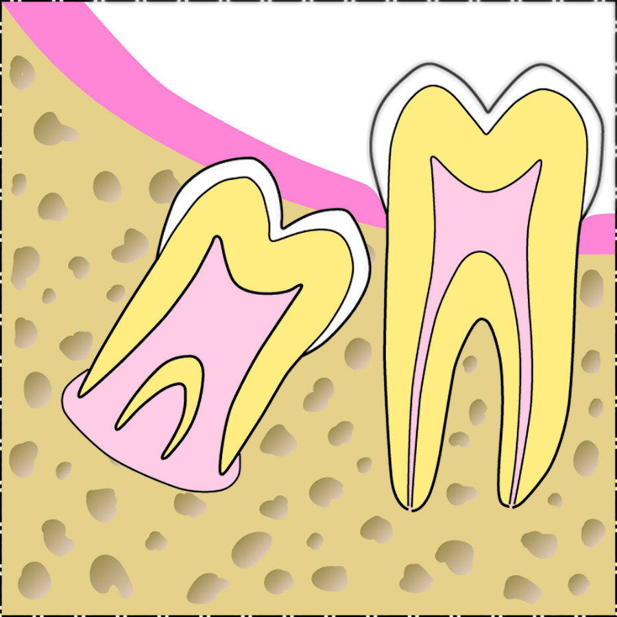 Afb. 6b. Te late timing van verwijdering van de derde molaar