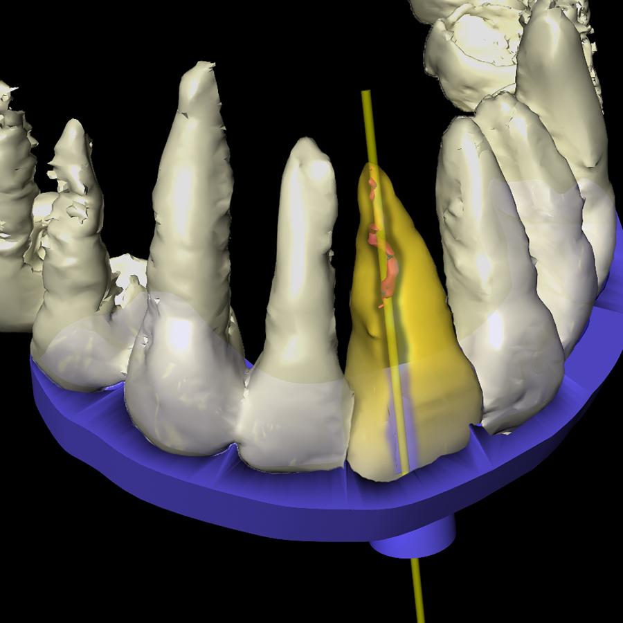 Afb. 5. Ontwerp voor geleidemal endodontische behandeling