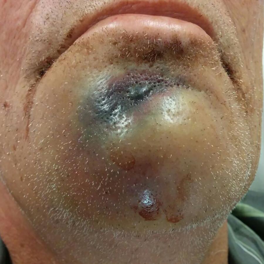 Afb. 1. Klinisch beeld van de doorbraak van een laesie naar de kinhuid