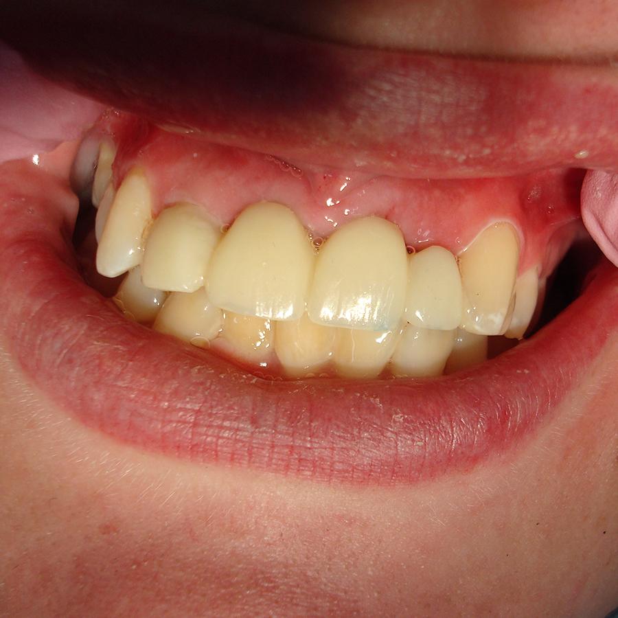 Afb.  6. Etsbrug voor diasteem in situ.