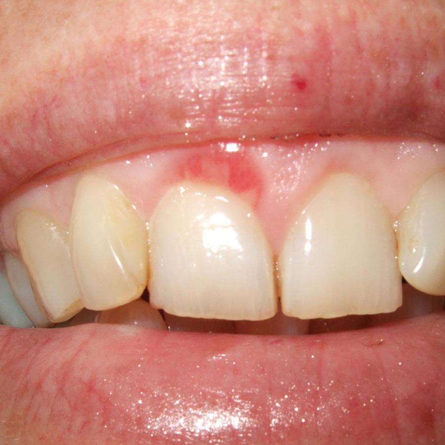 Afb. 1. Oppervlakkige, erythemateuze aandoening van de marginale gingiva.