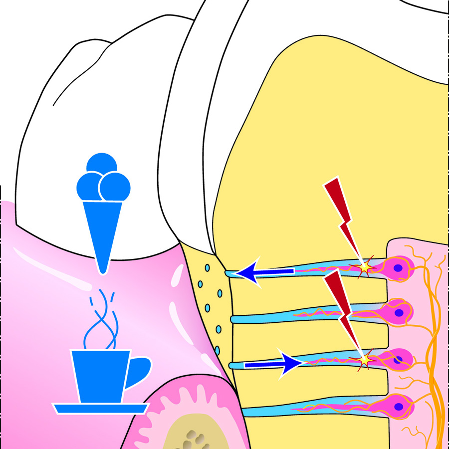 Afb. 2. Hydrodynamisch proces tandhalsgevoeligheid