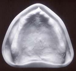Afb. 4. Model waarmee de verregaande atrofie van de processus alveolaris maxillae kan worden geïllustreerd.