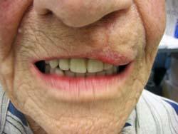 Afb. 3. Nieuwe gebitsprothesen geplaatst