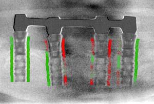 Afb.3. Subtractie van 2 panoramische röntgenopnamen. Rood: botverlies. Groen: tie het meest geschikt is voor vroege herkenning van het botaanmaak.