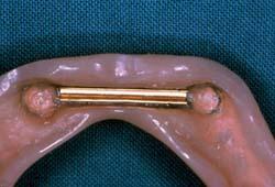 Afb.1. Prothesebasis van een overkappingsprothese met een Dolder huls die vastklikt op een eivormige staaf.