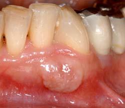Afb. 1. Klinisch aspect van de zwelling van de gingiva en de alveolaire mucosa.